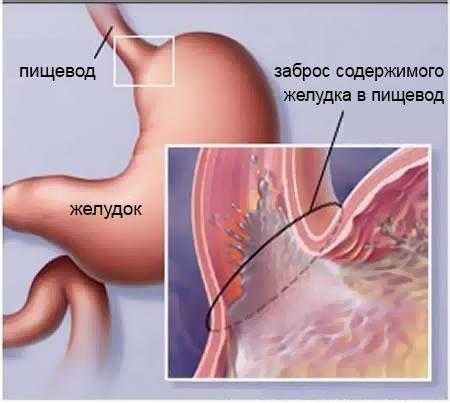 Гастроэзофагеальная рефлюксная