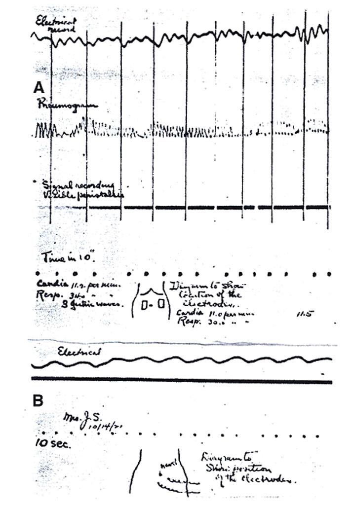 Первая электрогастрограмма человека